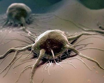 Рак, злокачественная опухоль