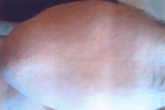 Псориаз касаллиги - Псориаз. Лечение
